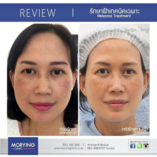 Review รักษาฝ้า Meso Therapy ฟื้นฟูสภาพผ