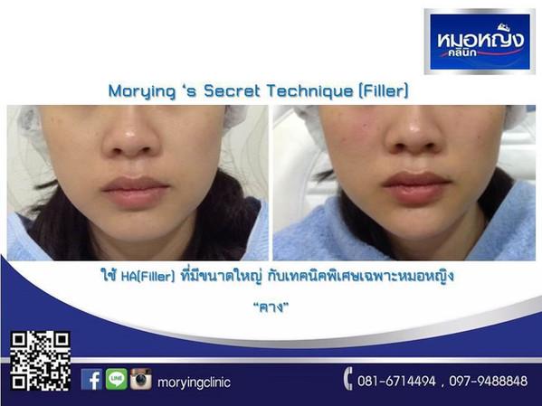 รีวิวฉีดฟิลเลอร์คาง Morying Clinic 8.jpg