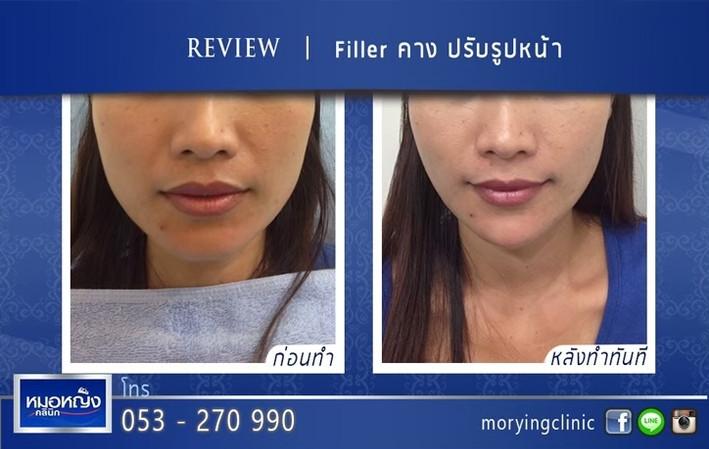 รีวิวฉีดฟิลเลอร์คาง Morying Clinic 7.jpg