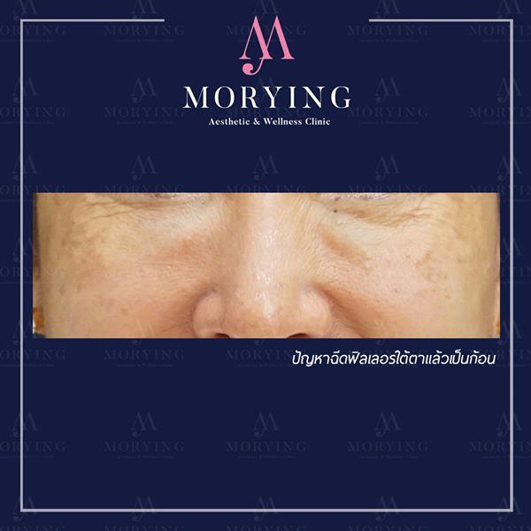 แก้ไขฟิลเลอร์เป็นก้อน Morying Clinic 1.j