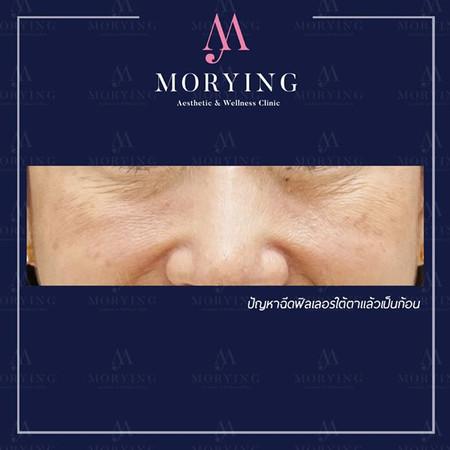 แก้ไขฟิลเลอร์เป็นก้อน Morying Clinic 2.j