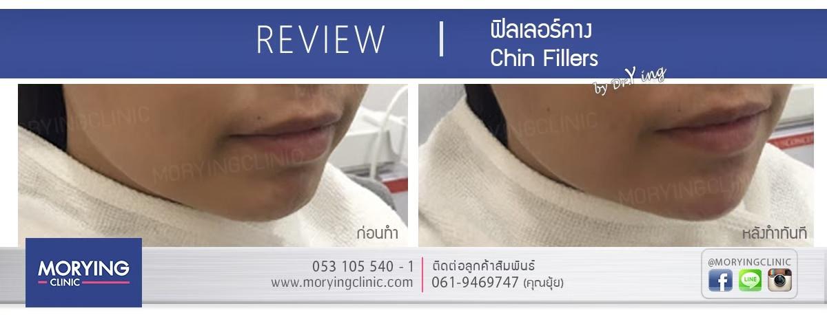 รีวิวฉีดฟิลเลอร์คาง Morying Clinic 2.jpg