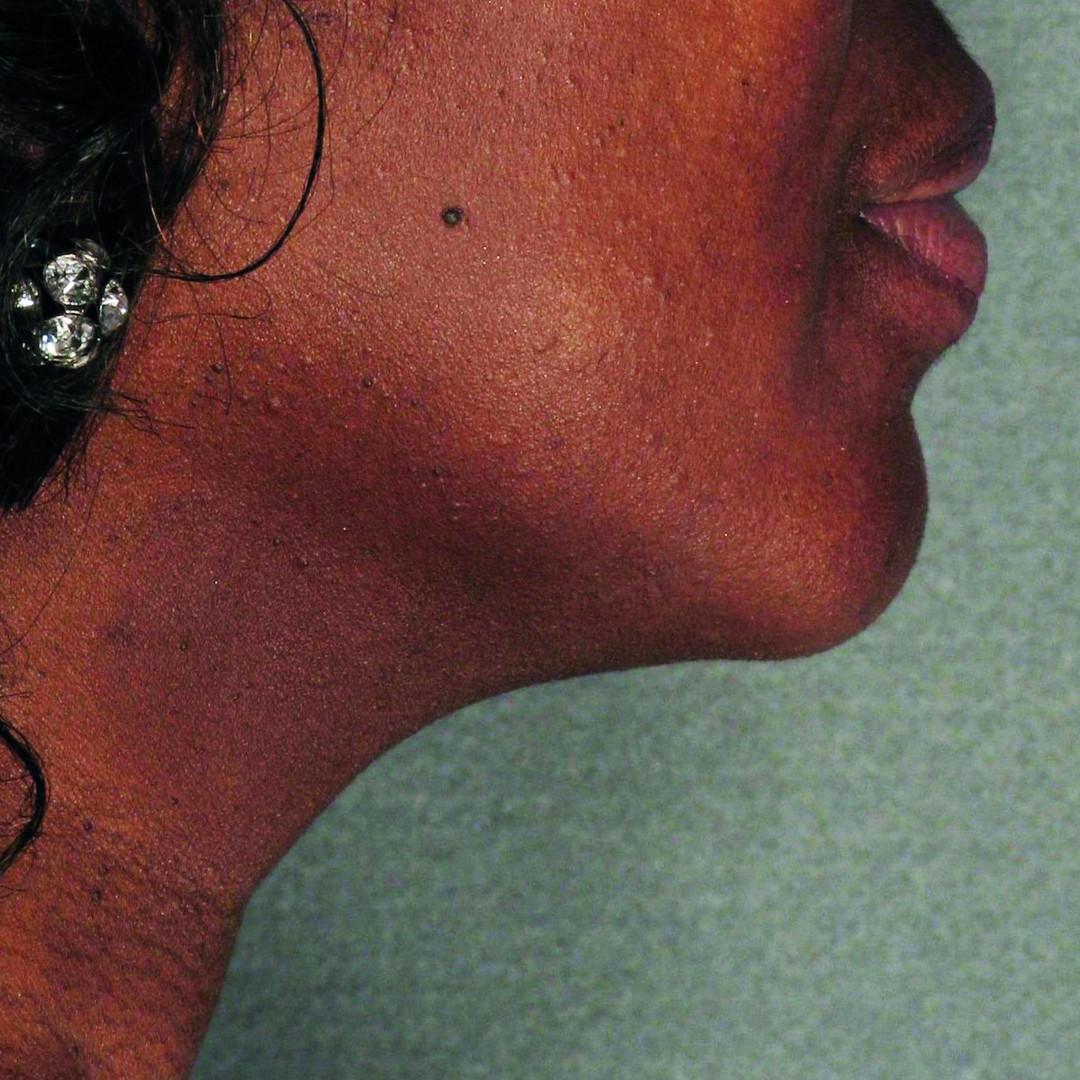 รีวิว ulthera หมอหญิง คลินิก