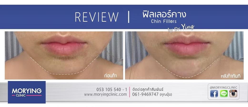รีวิวฉีดฟิลเลอร์คาง Morying Clinic 3.jpg