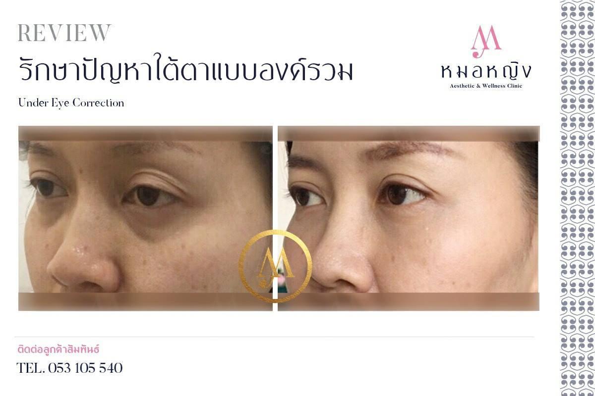 รีวิวการรักษาปัญหาใต้ตาแบบองค์รวม Moryin