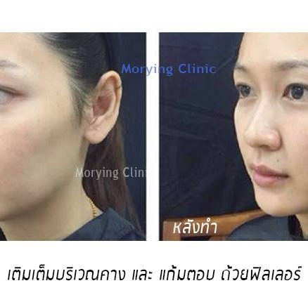 ปรับรูปหน้าแบบองค์รวม Morying Clinic