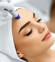 Microdermabrasion, Lex Lines