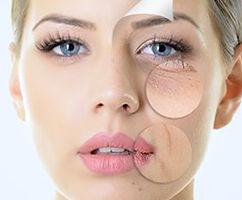 microneedling, anti aging, hyaluron
