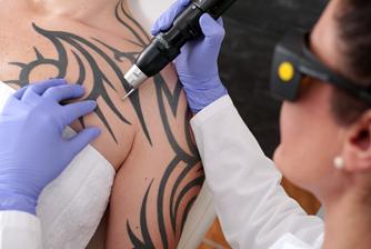 Tattoo-Sünden, mein Tattoo muss weg!