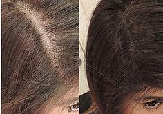 Kopfhaut Pigmentierung Haarpigmentierung