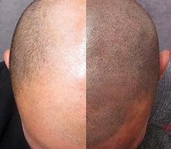 Kopfhaut Pigmentierung, Haarpigmentierung