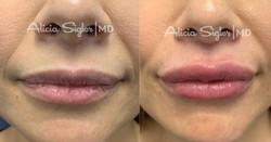 Lip Filler-2021-01-09-20-15-06