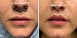 Before+After_Liplift2