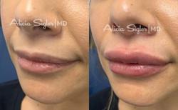 Lip Filler2-2021-01-09-20-15-06
