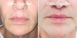 Before+After_Liplift3