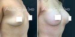 Breast-Implant#3