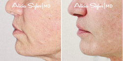 Before+After_Liplift4