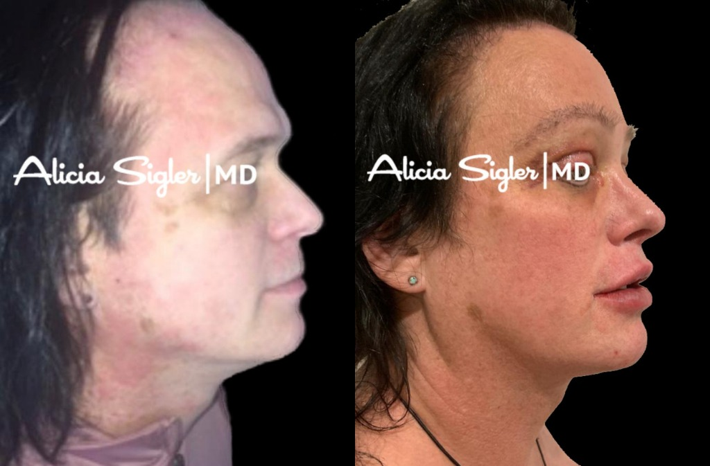 Facial Feminization-2021-01-09-20-14-16.