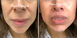 Before+After_Liplift