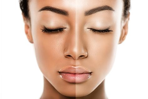 Skin-Lightening-Image.png
