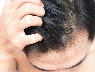 17-12-3-an-itchy-scalp-might-be-a-sign-o