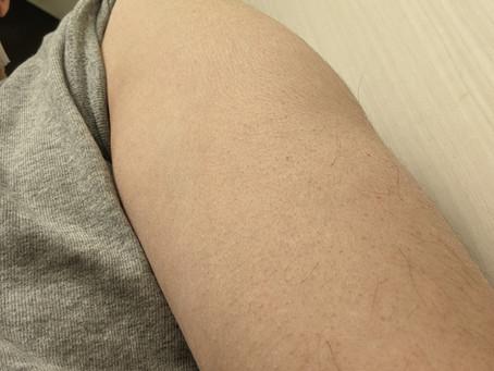2回目コロナワクチン接種。