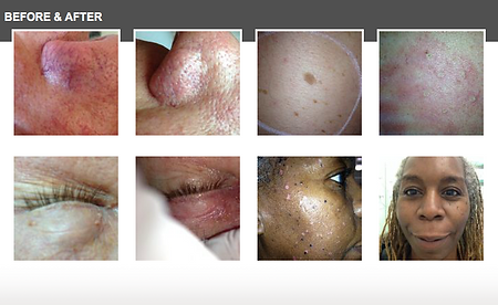 Lamprobe Chicago, skin tags, milia, aged spots