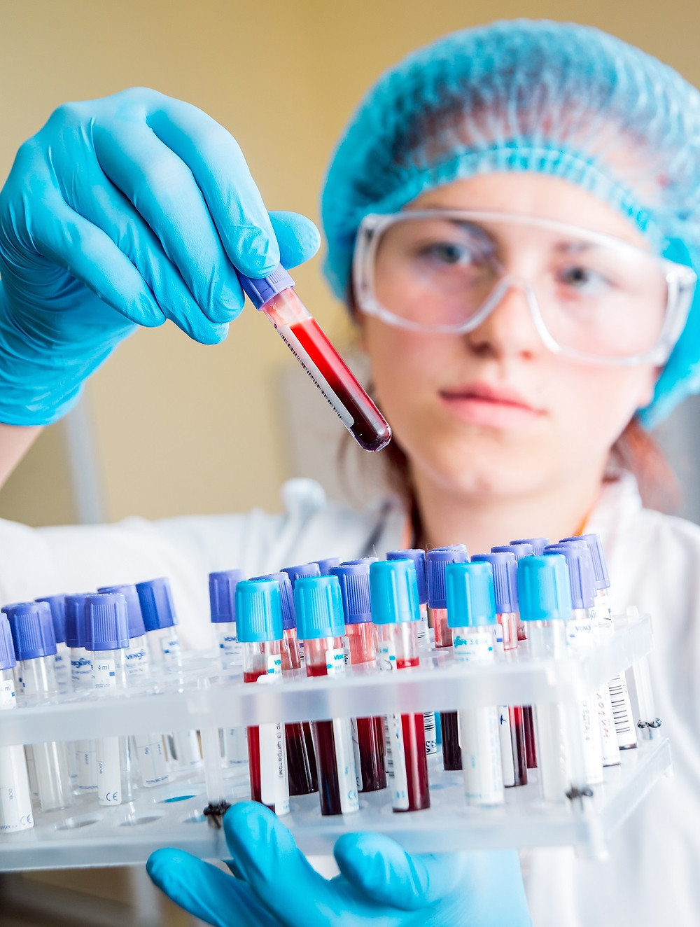 A female scientist wearing a blue hair net and safety googles holding a tray of test tubes full of blood