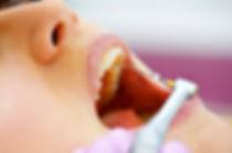 endodoncia-implantes-dentales4.jpg