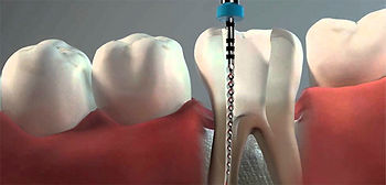 endodoncia-implantes-dentales5.jpg