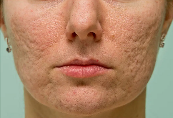 acne scar.PNG