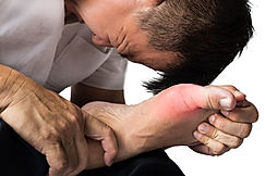 Man with painful and inflamed gout on hi