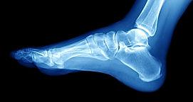 足の骨.jpg