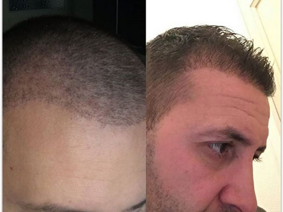 Best Hair Transplant Turkey