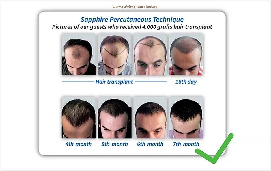 Saphirhaar-Transplantation