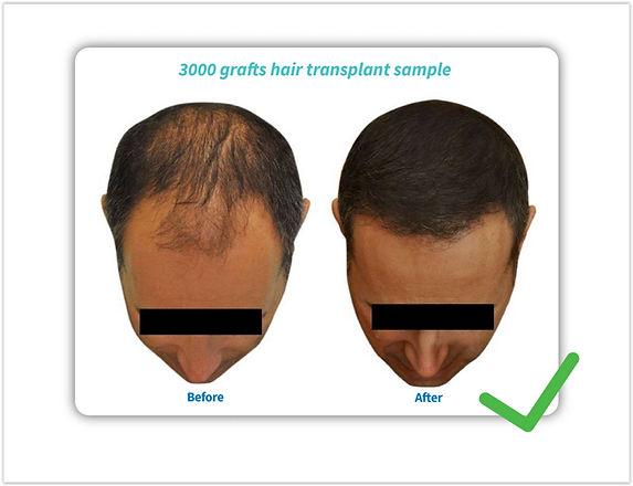 Option 1: greffe de cheveux indolore et mal rasé