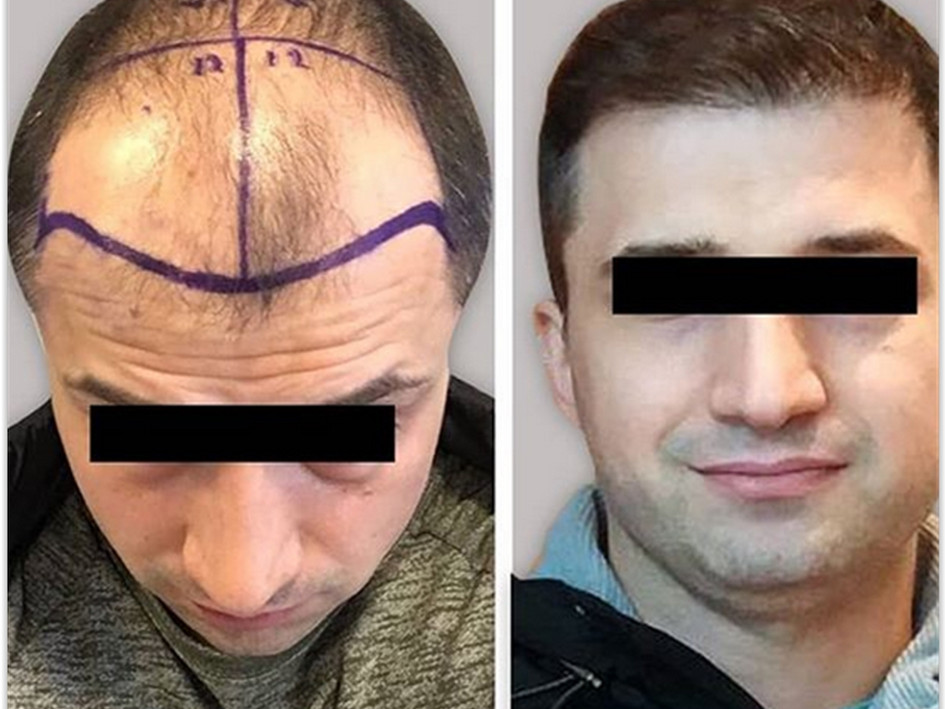 Before After hair transplant Turkey photos