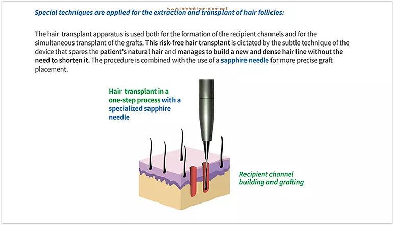Haartransplantation schmerzlos & unrasiert