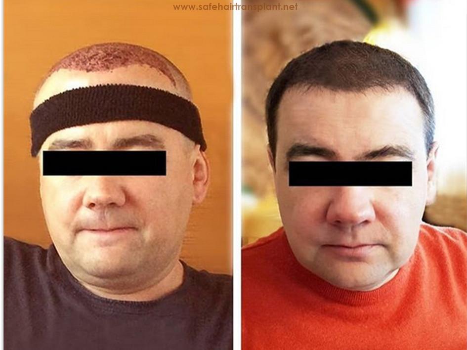 Hair transplant Turkey