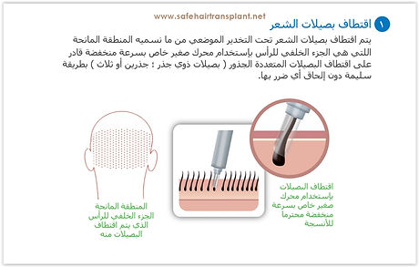 زراعة الشعر تركيا آمنة
