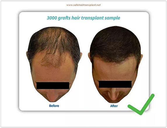 Haartransplantation schmerzlos & unrasiertn schmerzlos & unrasie