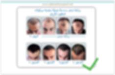زرع الياقوت الشعر