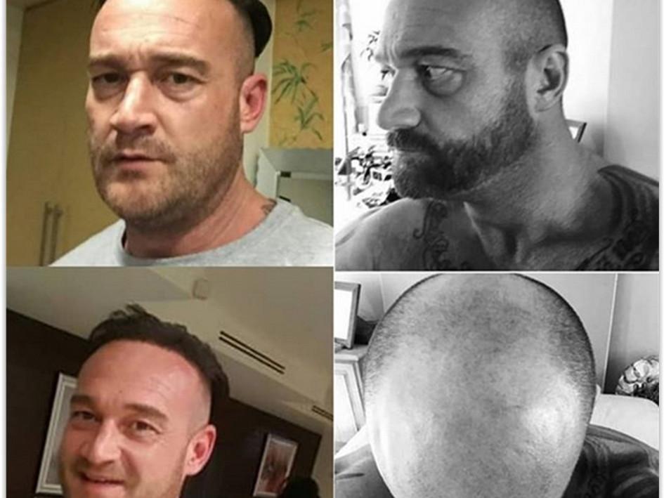 زراعة الشعر تركيا قبل وبعد
