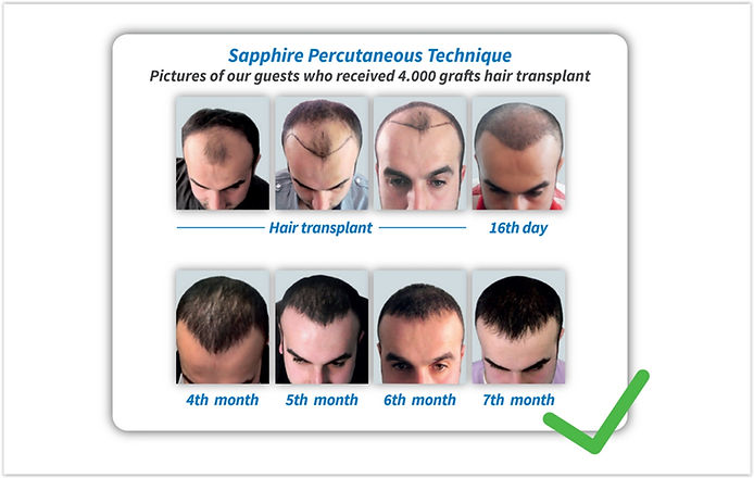Shappire Hair Transplant Turkey step 6