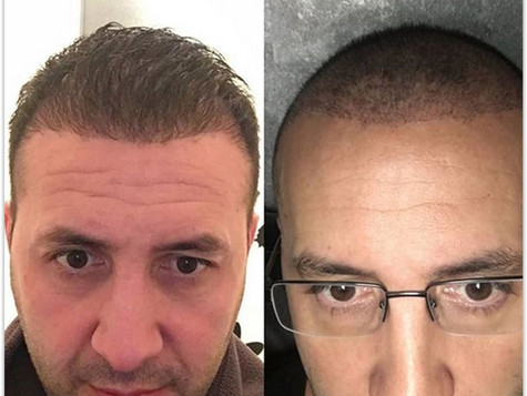 Best Hair Transplant Turkey