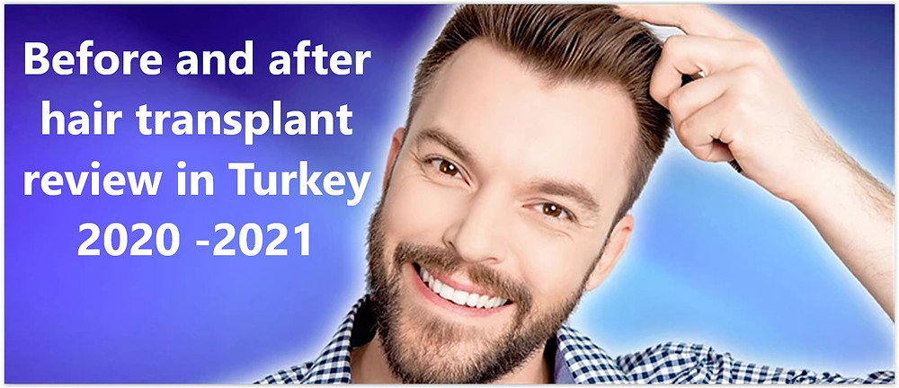 Before and after hair transplant review in Turkey 2020 -2021