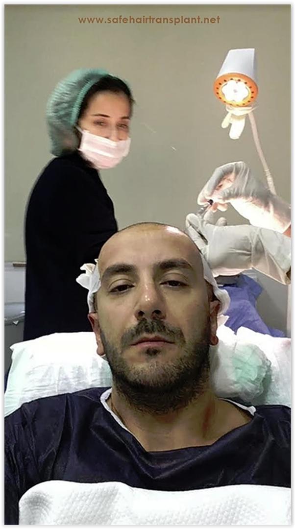3 Reasons to prefer hair transplantation in Istanbul than London