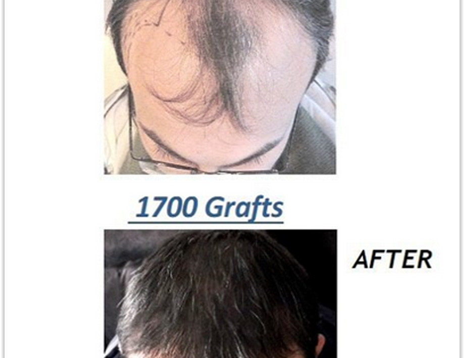 Safe Hair Transplant Turkey