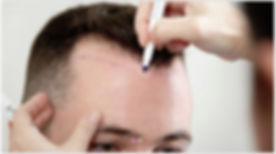 Painless Hair Transplant