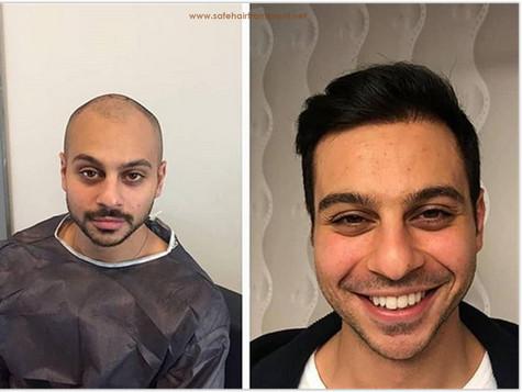 Best Hair Hair Transplant Turkey Before AfterTransplant Turkey